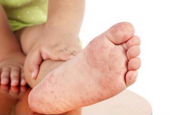 Nhận biết triệu chứng tay chân miệng cấp độ 1 để xử lý sớm