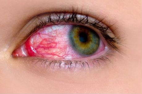 Người bị đau mắt đỏ nên ăn gì để nhanh khỏi?